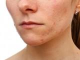 L'acne, il problema estetico piu' comune, come curarlo?