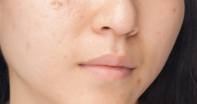 come eliminare le macchie della pelle